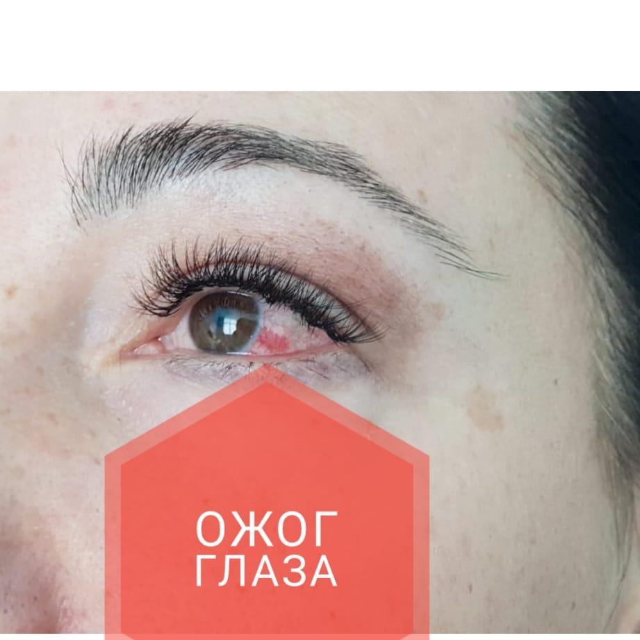 Ожог глаза при наращивании ресниц